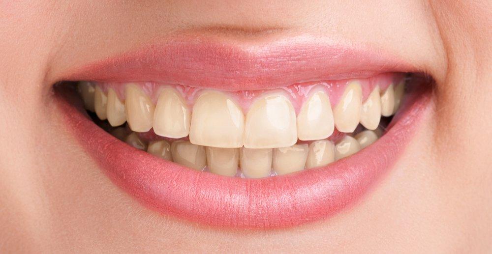 Zähne vor dem bleaching