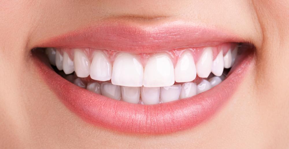 Gesunde und gerade Zähne